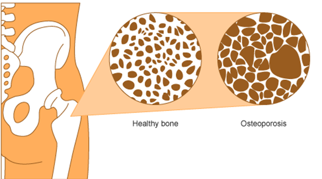 This image compares healthy bone with bone affected by osteoporosis. The image shows reduced bone density in the bone affected by osteoporosis compared with healthy bone.