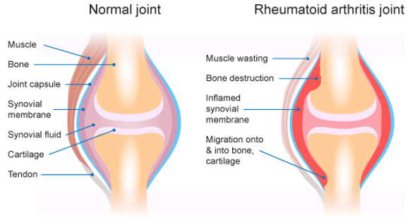 This image compares the anatomy of a healthy joint with a joint affected by rheumatoid arthritis. The image shows muscle wasting, bone destruction, inflamed synovial membrane surrounding the joint, and migration of the synovial membrane onto and into bone and cartilage in rheumatoid arthritis compared with a healthy joint.