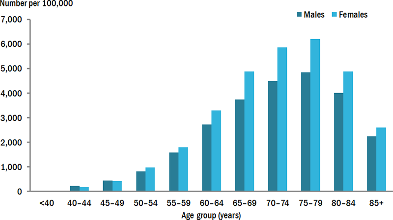 This vertical bar chart compares the rate (per 100,000 population) of hospitalisations for osteoarthritis, across various age groups by sex, in 2015–16. The rate of hospitalisations was highest in the 75–79 age group for both males (4,845) and females (6,196), and lowest in the <40 age group for males (28) and females (19).