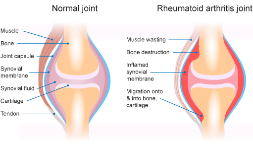 Normal joint compared to rheumatoid arthritis joint diagram