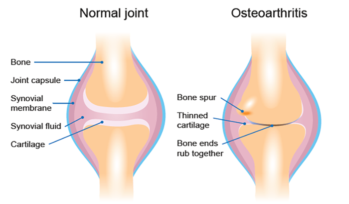 This image compares the anatomy of a healthy joint with a joint affected by osteoarthritis. The image shows bone spurs, thinned cartilage and bone ends that rub together in osteoarthritis compared with a normal joint.